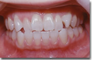 Orthodontics pic1 - Tokyo dentists in English