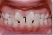Orthodontics pic4- Tokyo dentists in English
